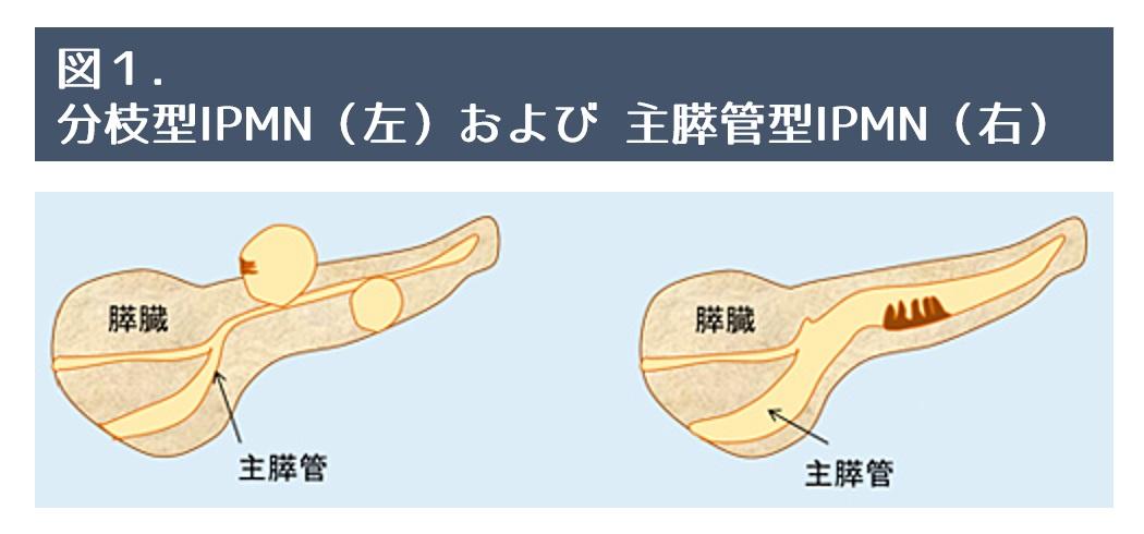 食べ物 する を 膵臓 強く 内臓のアンチエイジング [アンチエイジング]